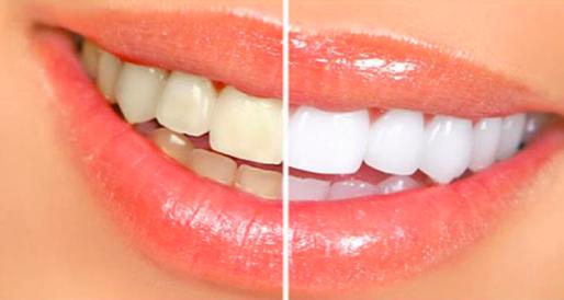 klinik gigi jakarta barat